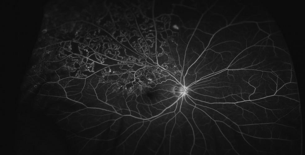 Branch-Retinal-Vein-Occlusion-1