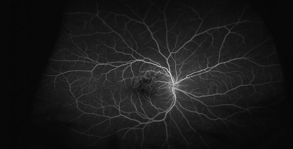 Branch-Retinal-Vein-Occlusion-2