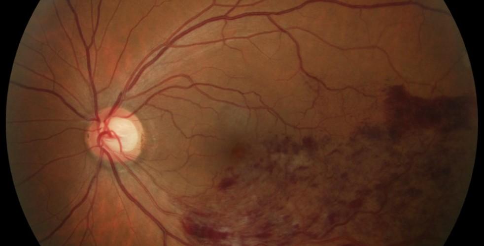 Branch Retinal Vein Occlusion 4
