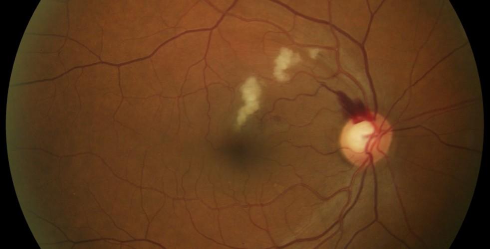 Branch Retinal Vein Occlusion 5