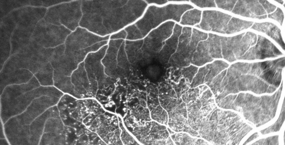 Branch Retinal Vein Occlusion 7