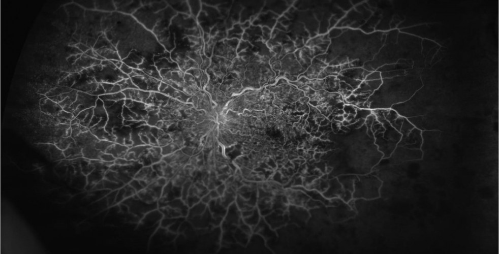 Central Retinal Vein Occlusion 1