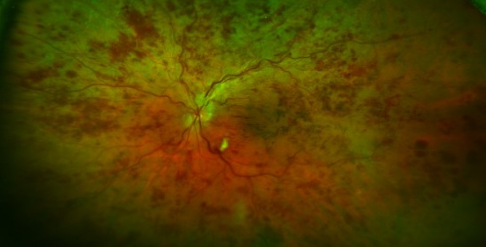 Central Retinal Vein Occlusion 2