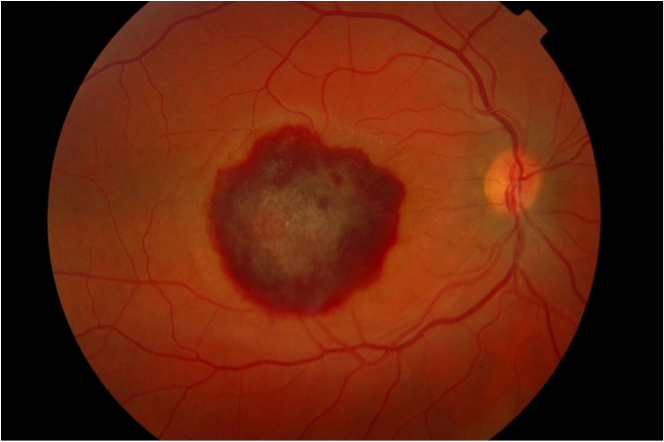 case study diabetic retinopathy When diabetic retinopathy becomes more severe comprehensive eye exams are   clinical research and case studies - diabetes asia pacific 2019 (japan).